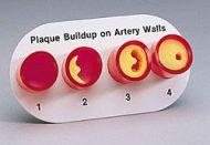 Modelo de Arteria